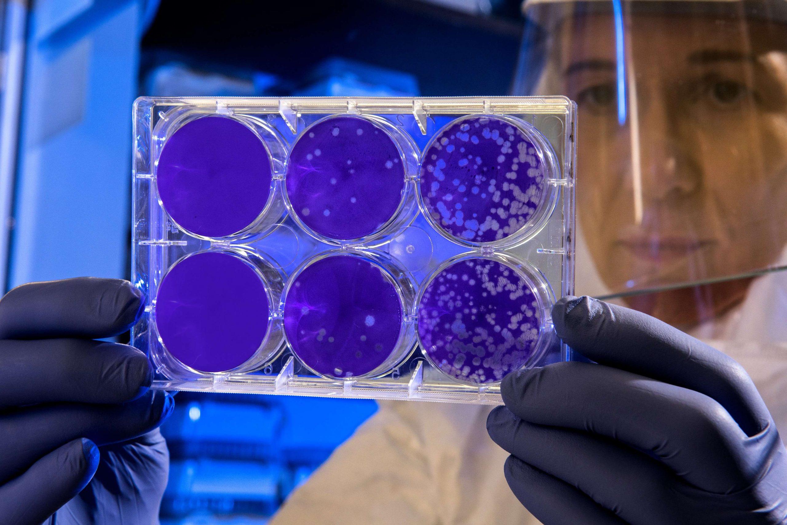 Quand la MicroGC vient en aide aux biologistes !